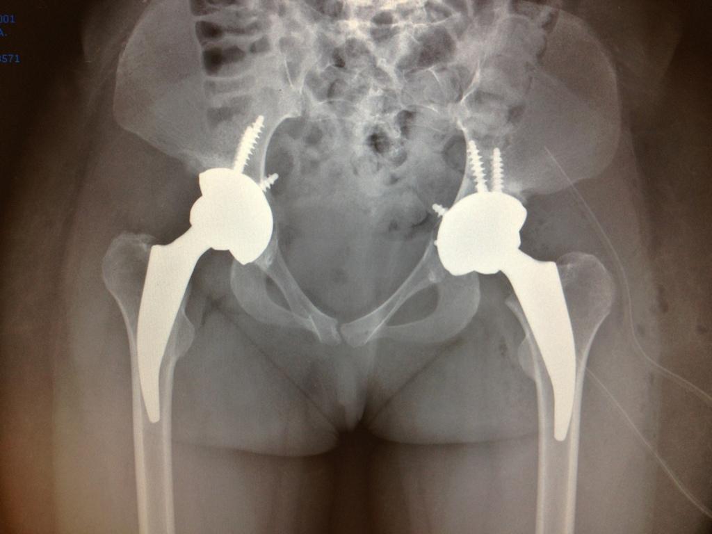 protesis cadera MIS